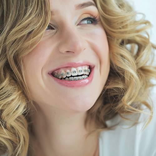 bliss dental and orthodontics lubbock midland odessa tx service braces and orthodontics image